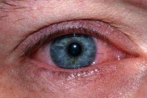 Enfermedades oculares por exposicion al sol Fotoqueratitis